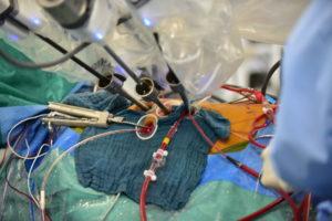 心臓ダビンチ手術