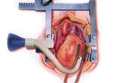 心臓 バイパス 手術 リスク