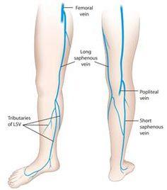 冠動脈バイパス術(CABG)|渡邊剛 公式サイト